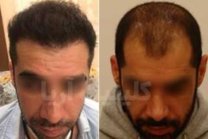 کاشت مو بدون جای زخم