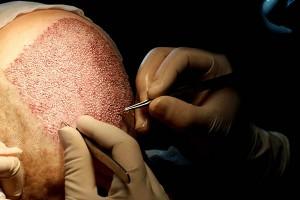کاشت مو با دستگاه ایمپلنتر | با اقساط بلندمدت